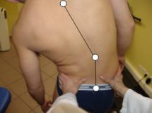 stabilometrie